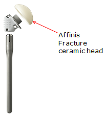 affinis ceramic head implant