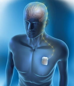 A neurostimulation device being used for deep brain stimulation