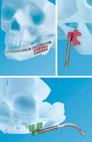 Craniomaxillofacial Distraction System components shown in x-ray
