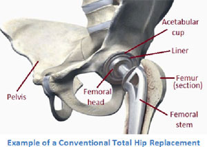 Picture of an example of a conventional total hip replacement