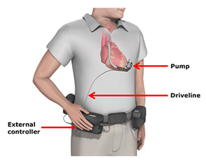 diagram showing the external controller, driveline and pump implanted in a patient