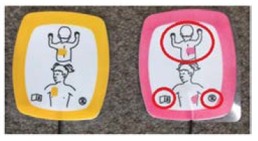 image showing the incorrect use of defibrillator..