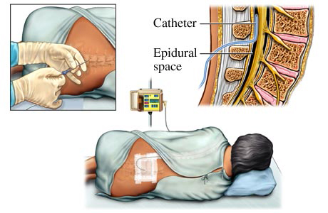 Figure 1: Placement of epidural catheters - The catheter comes into close contact with nerve tissue.