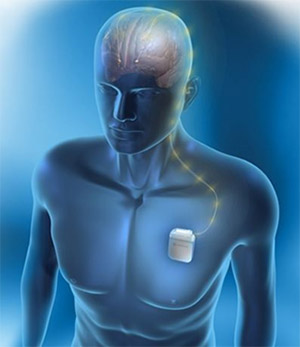 3D illustration showing an implanted deep brain stimulation device