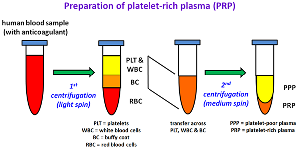 Preparation of platelet-rich plasma (PRP)