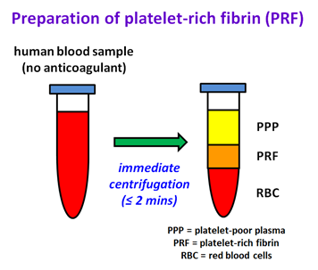 Preparation of platelet-rich fibrin (PRF)